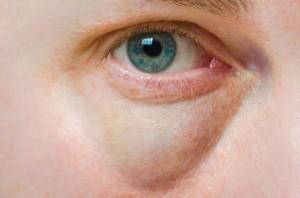 bags-under-eyes-treatment