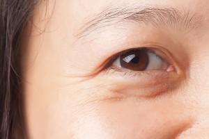 causes-bags-under-eyes