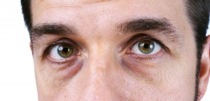 causes-dark-circles-eyes